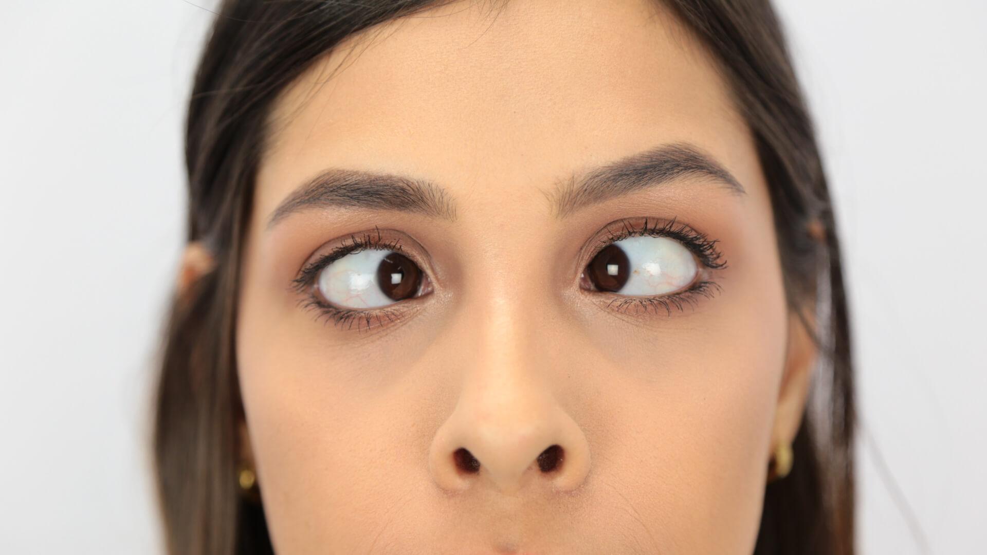 Sideways viewing eye excercises